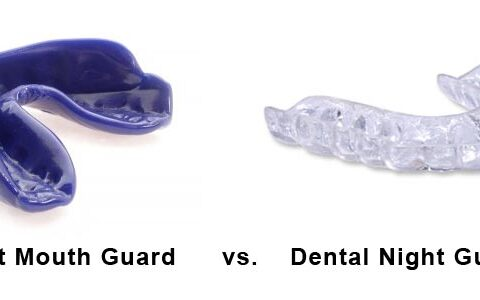 Mouthguards or Nightguards
